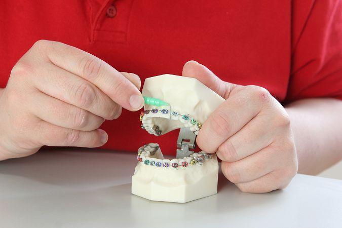 Zahnpflege mit Zahnspange