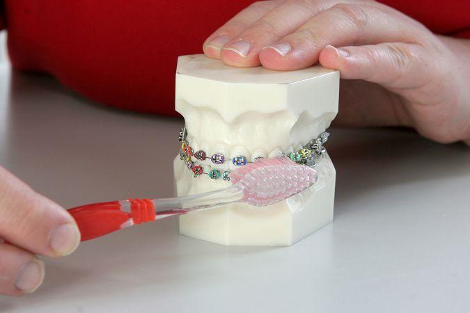 Zahnspange putzen